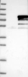 NBP1-90812 - GTF2F1 / RAP74