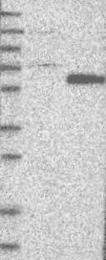 NBP1-81776 - RAR-beta / RARB