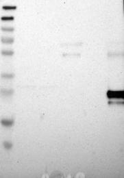 NBP1-83214 - RARRES3