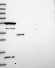 NBP1-82015 - RASGEF1B