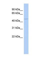 NBP1-58874 - RASGEF1C