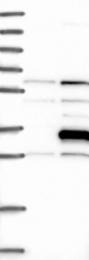 NBP1-89425 - RASSF3