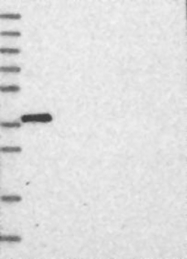 NBP1-85881 - RASSF6
