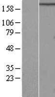 NBL1-15184 - RB1CC1 Lysate