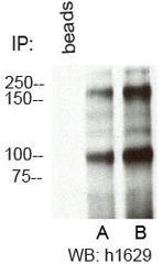 NBP1-49535 - RBBP6 / RBQ1