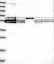 NBP1-88301 - RBCK1 / RNF54
