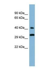 NBP1-58940 - DNAJC27 / RBJ