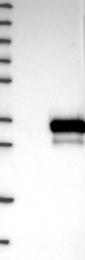 NBP1-80857 - DNAJC27 / RBJ