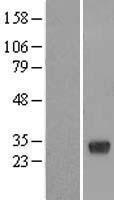 NBL1-15190 - RBJ Lysate