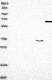 NBP1-84115 - Ribokinase / RBKS