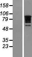 NBL1-15194 - RBM10 Lysate