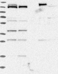 NBP1-85981 - RBM12B