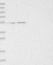 NBP1-81202 - RBM17 / SPF45
