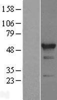 NBL1-15200 - RBM22 Lysate