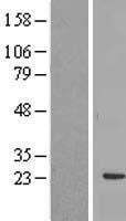 NBL1-15202 - RBM24 Lysate