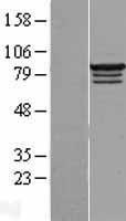 NBL1-15204 - RBM28 Lysate