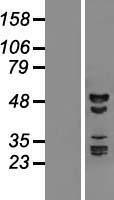 NBL1-15211 - RBM41 Lysate