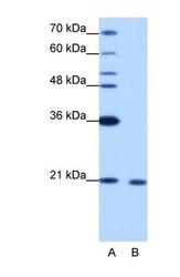 NBP1-57274 - RBM8A / RBM8
