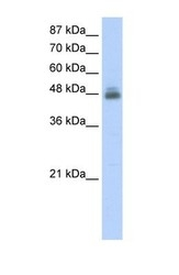 NBP1-58231 - RBMS1