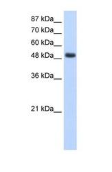NBP1-58232 - RBMS1