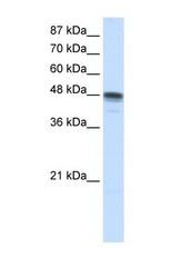 NBP1-57147 - RBMS3