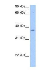 NBP1-57363 - RBMY1A1 / RBMY1C