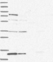NBP1-84383 - Retinoid-binding protein 7 / RBP7