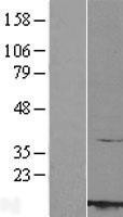 NBL1-15236 - RBX1 Lysate