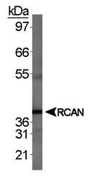 NBP1-46852 - Calcipressin-1
