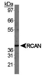NBP1-46853 - Calcipressin-1