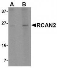 NBP1-76995 - Calcipressin-2