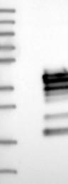 NBP1-84972 - Calcipressin-3