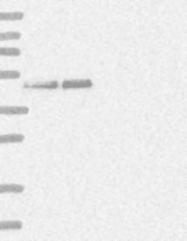 NBP1-85637 - RCC1 / CHC1