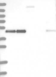 NBP1-85638 - RCC1 / CHC1