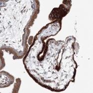 NBP1-83483 - Reticulocalbin-1 / RCN1