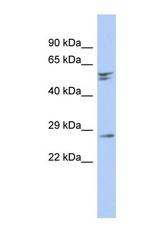 NBP1-55461 - RD3