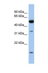 NBP1-58017 - RDH12