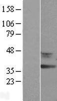 NBL1-15256 - RDH12 Lysate