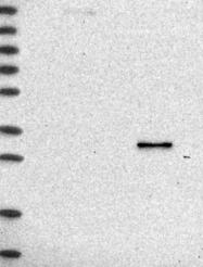NBP1-87117 - RDH16 / RODH4