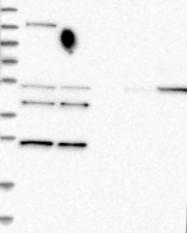 NBP1-82709 - RDM1 / RAD52B