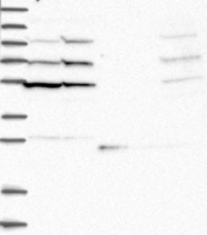 NBP1-87803 - RecQ1 / RECQL