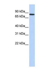 NBP1-57558 - ADARB2 / ADAR3