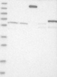 NBP1-90239 - ADARB2 / ADAR3