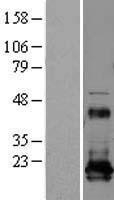 NBL1-15269 - REEP5 Lysate