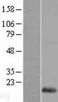 NBL1-15272 - REG1B Lysate