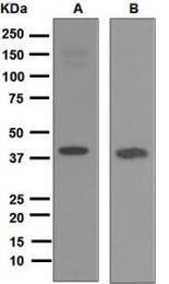 NBP1-95186 - REM1