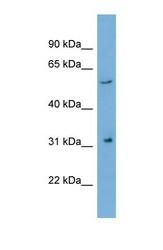 NBP1-55506 - REM1