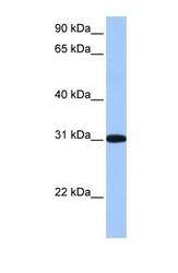 NBP1-56360 - RFPL2 / RNF79