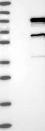 NBP1-86301 - RFX3