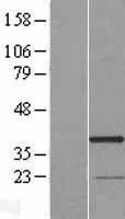 NBL1-15312 - RG9MTD3 Lysate